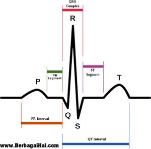 ekg 300x296 Cara Membaca EKG (Elektrokardiograf)